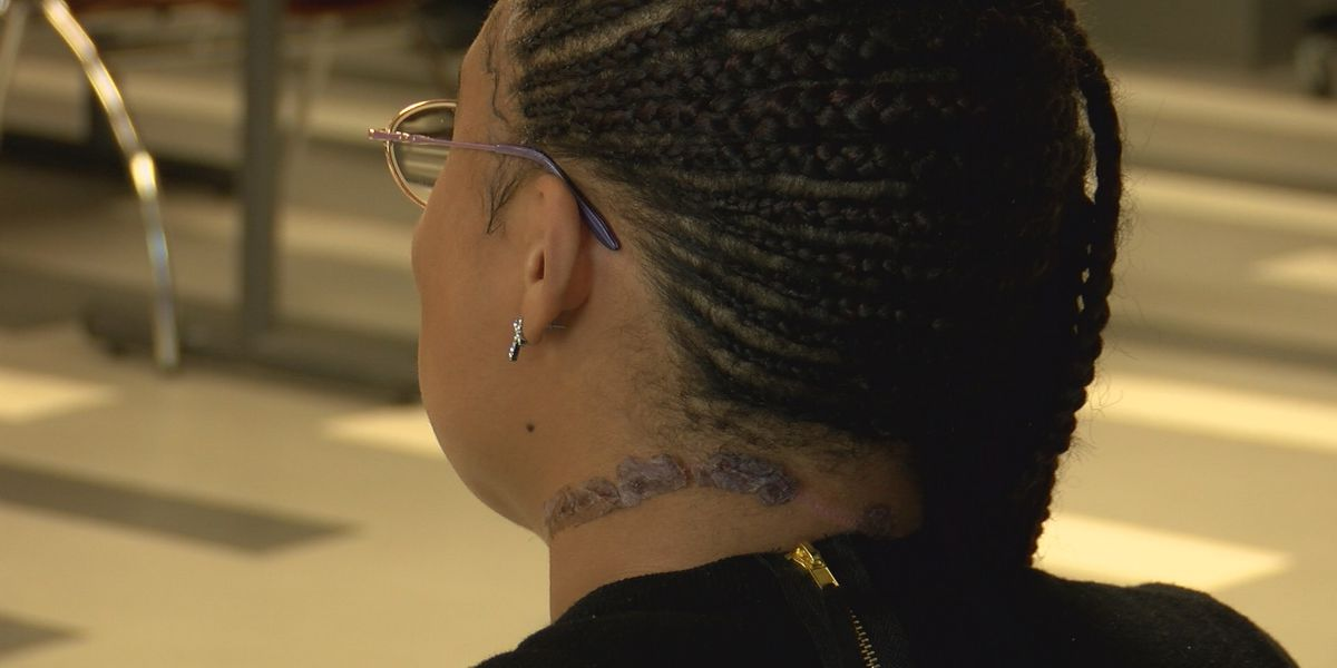 'It felt like a punch, you know, in the back of my neck': Albany woman fighting to put her attacker behind bars