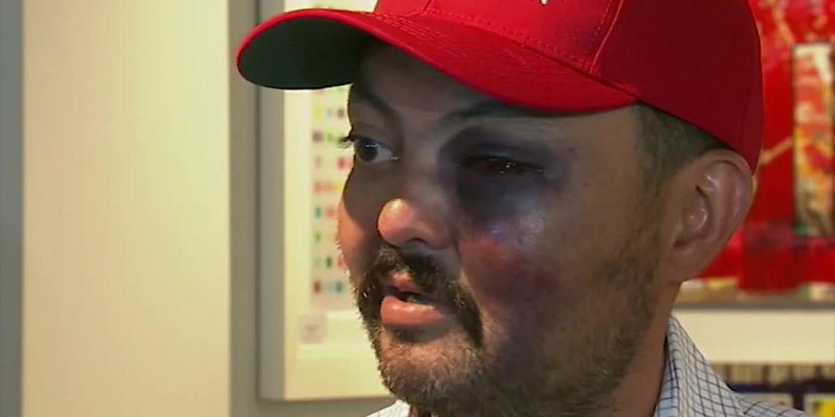 MAGA hat gets man attacked, he claims