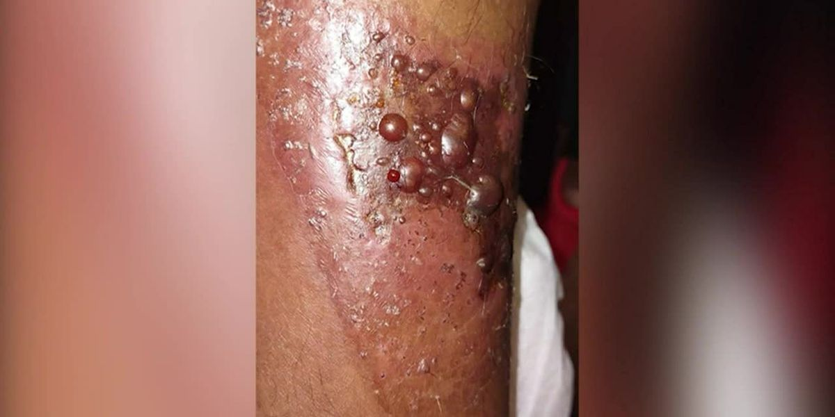 Family warns others after man hospitalized with flesh-eating bacteria
