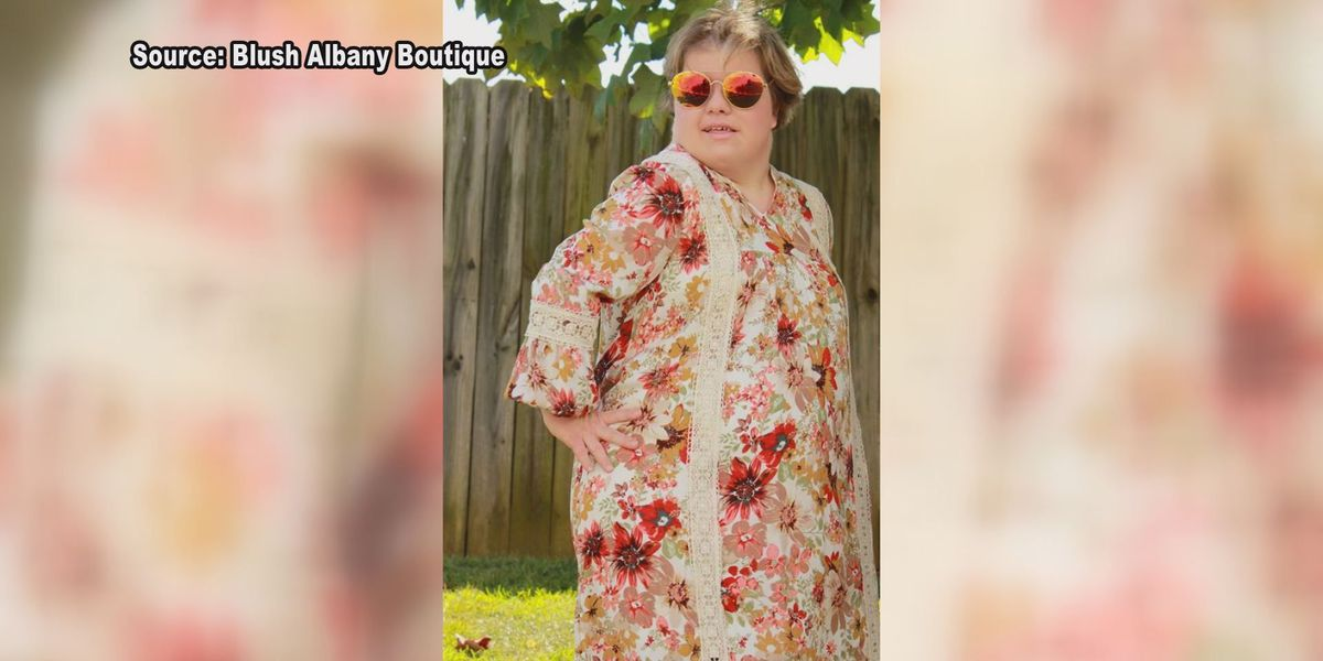 Model with Down Syndrome hopes to redefine beauty