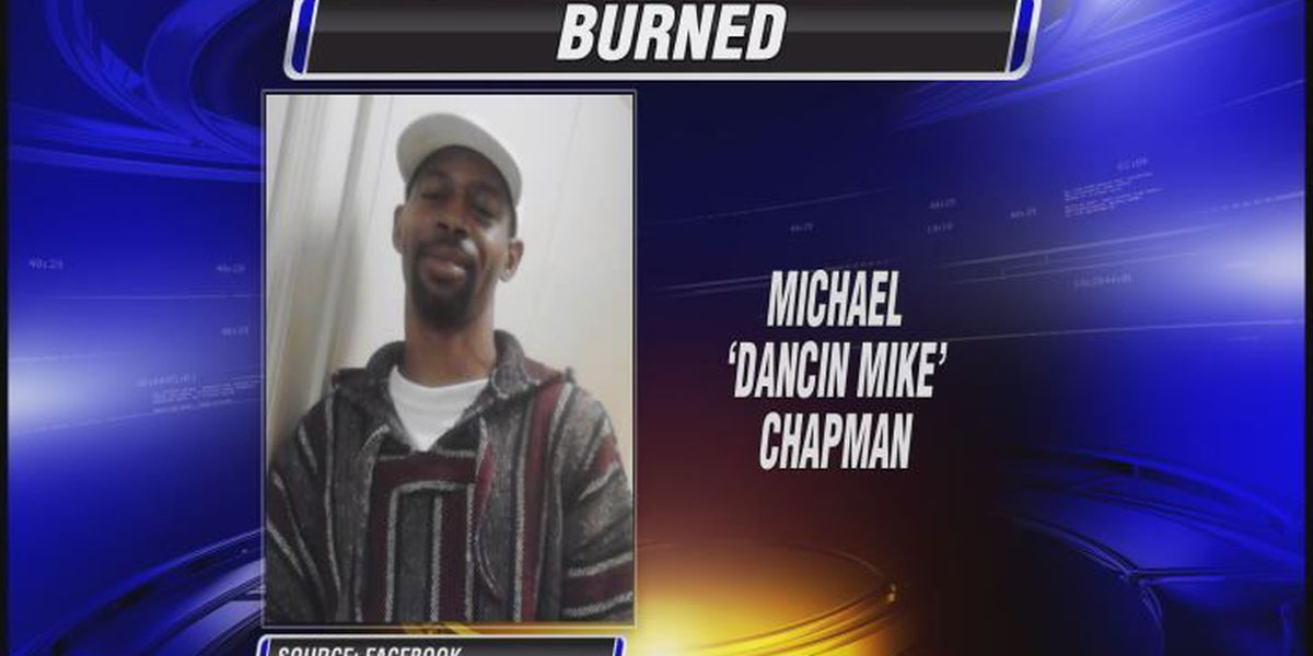 Albany burn victim remains in critical condition