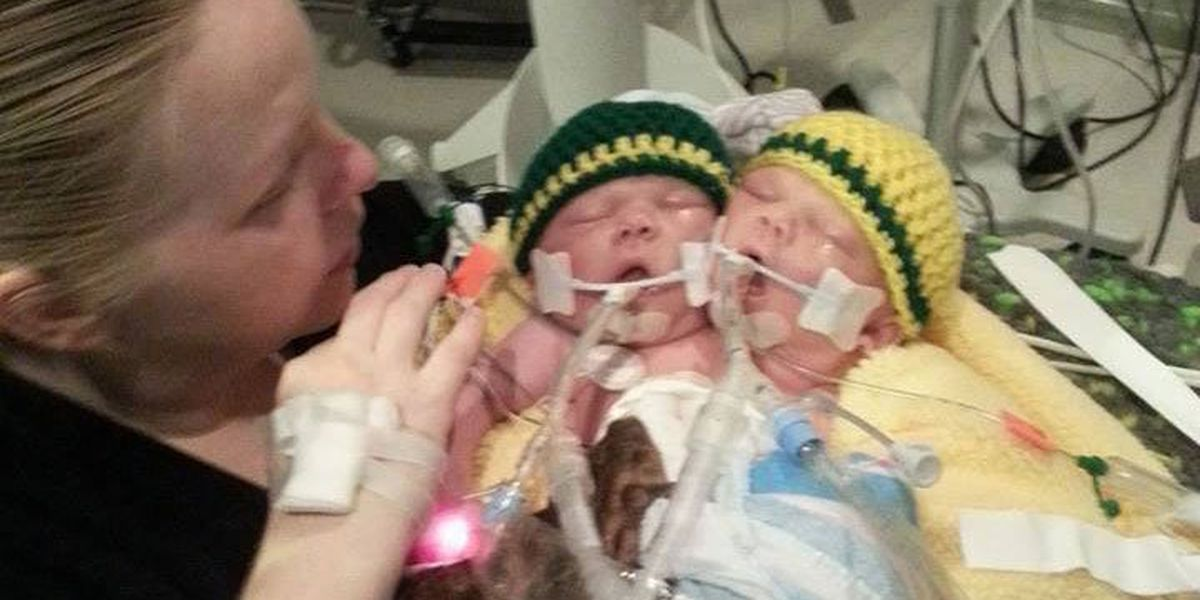 Conjoined twins born in Atlanta pass away